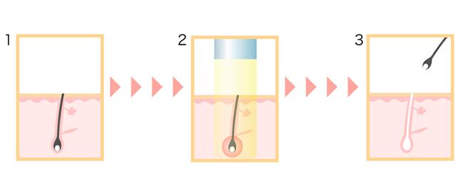 レーザー脱毛のメカニズム