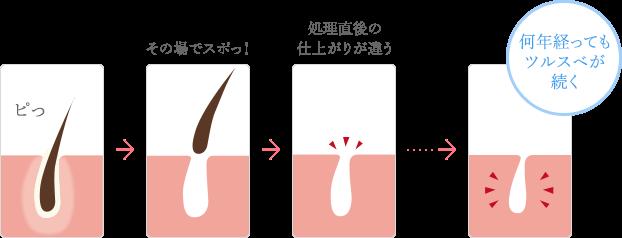 処理後の毛の様子